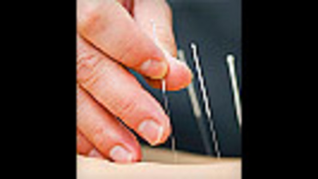 Acupuncture Less Effective for Skeptics