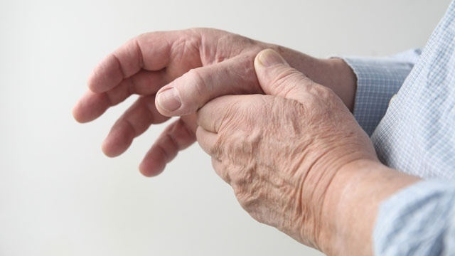 Some 24M adults restricted by severe arthritis — CDC