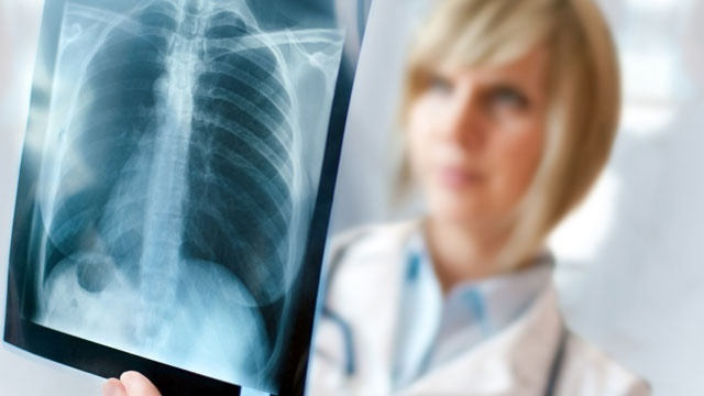 doctor looking at X-ray49906697