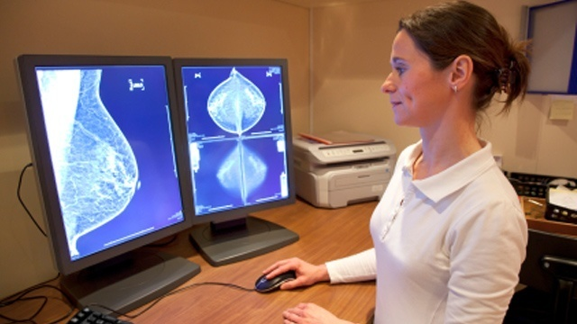 Mammogram guidelines: What are they?