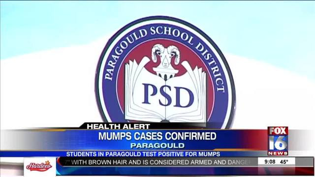 Mumps Cases Found in Northeast Arkansas - Story | Fox16