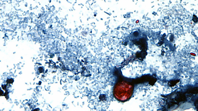 CDC reports spike in parasitic cyclospora infections this year