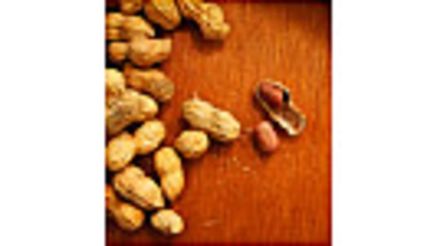 Doctors Talk About Getting Peanuts Into a Baby's Diet, Which May Cut Allergies