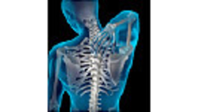 Back Pain? Steroid Shots May Raise Fracture Risk