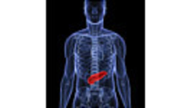 4 Types of Pancreatic Cancer Identified: Study