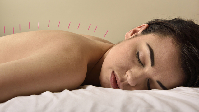Acupuncture's value in cancer care