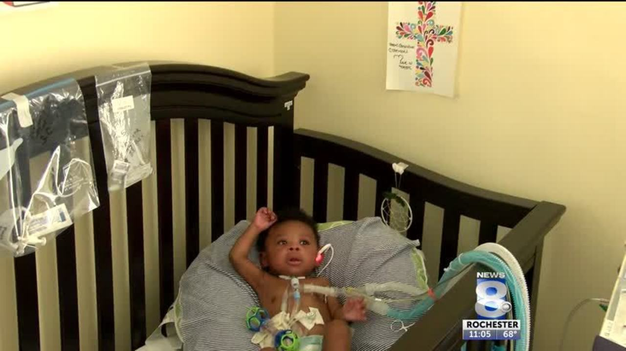 Local Baby Becomes The Youngest Patient In The World To Receive A Surgical  Potts Shunt