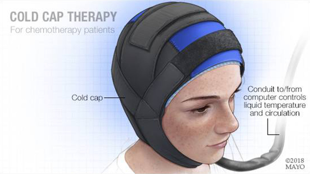 How cold cap therapy is helping cancer patients keep their hair during chemotherapy
