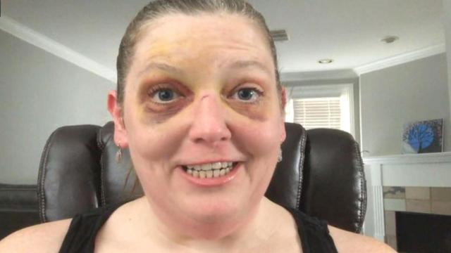 Woman Winds Up With 2 Black Eyes After Motorized Scooter