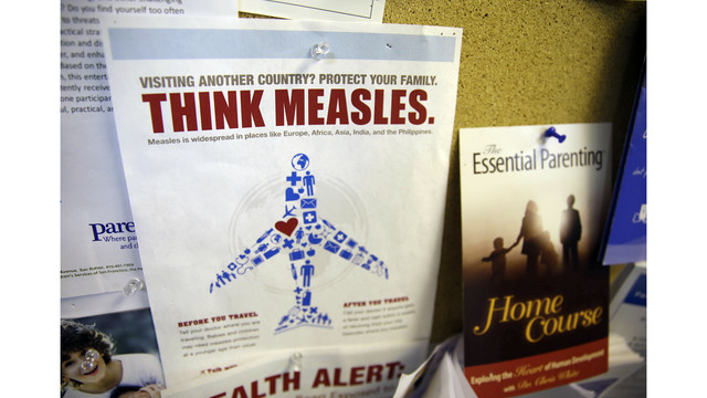 San Francisco resident contracts measles, city's first case since 2013